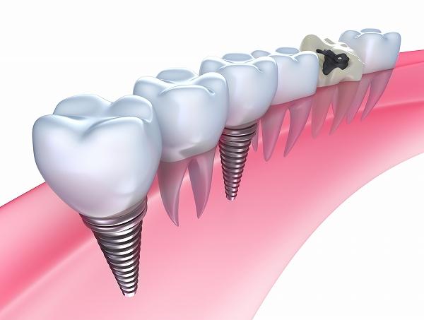 インプラント・ブリッジ・入れ歯と、歯を失ってしまった時の治療方法には選択肢があります